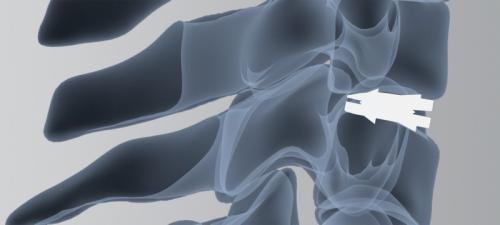 ARAMIS X-Ray2